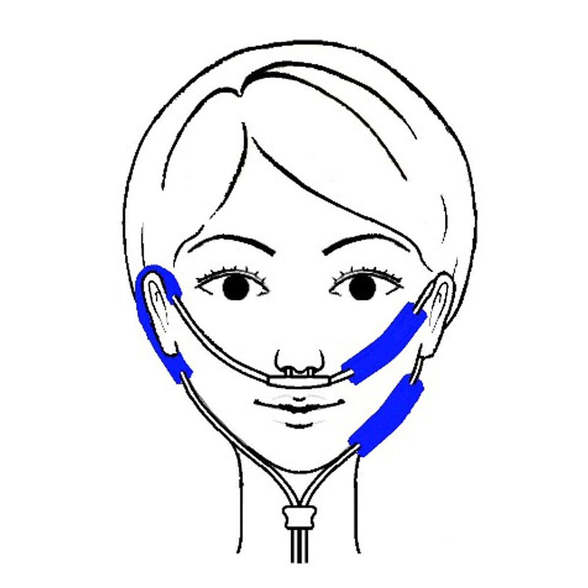 皮膚保護パッド